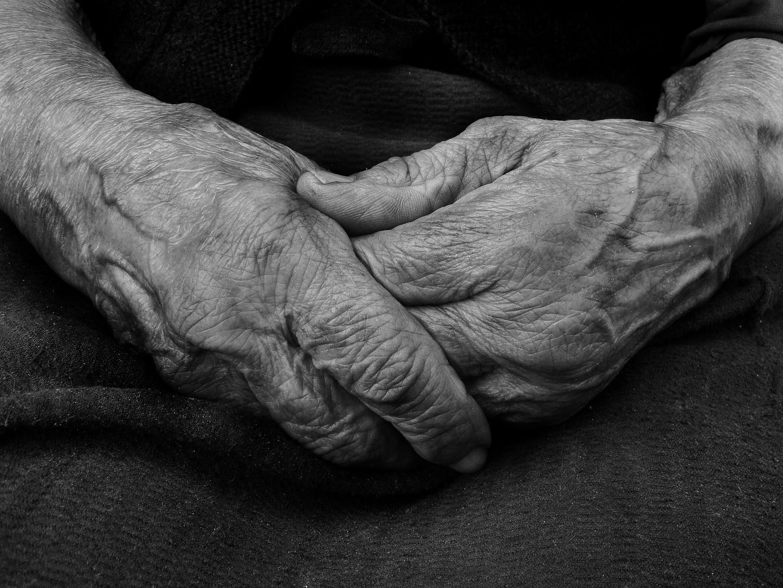 Ostarele ruke