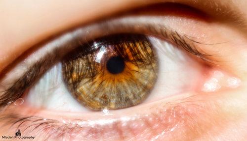 mladen oko